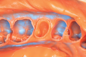 Fig. 9 Detailed view of the lingual and mesial margins