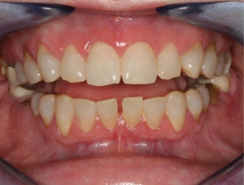 1A - Spacing between lower incisors contributing to difficulty eating